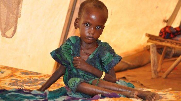 fotos-desnutricion-en-africa